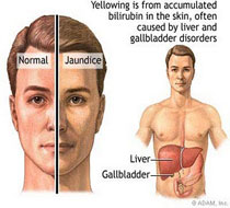 Liver Disorder Ayurvedic Treatment,Liver Disorder Treatment